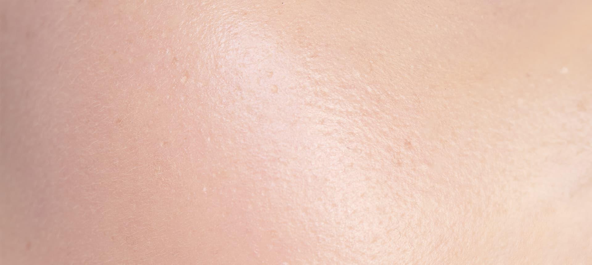 El impacto del exposoma:Los efectos sobre la piel