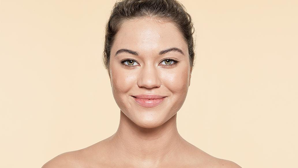 v_after-acne.jpg