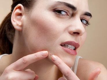 ¿Qué es el acné fúngico y cómo puedes tratarlo?