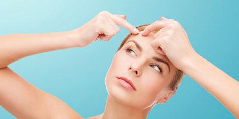 Tu estilo de vida, ¿está causando acné?
