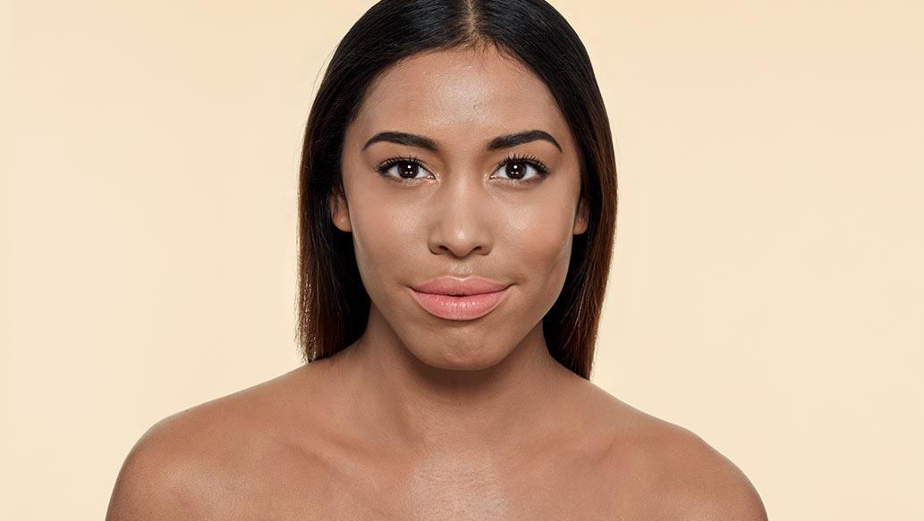 v_after-vitiligo.jpg