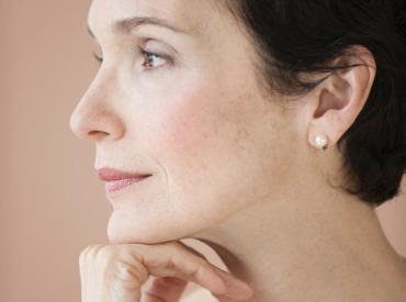 ¿Cómo quitar manchas oscuras en la piel?